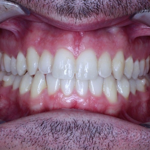 stephen teeth after photo via invisalign clear braces photo
