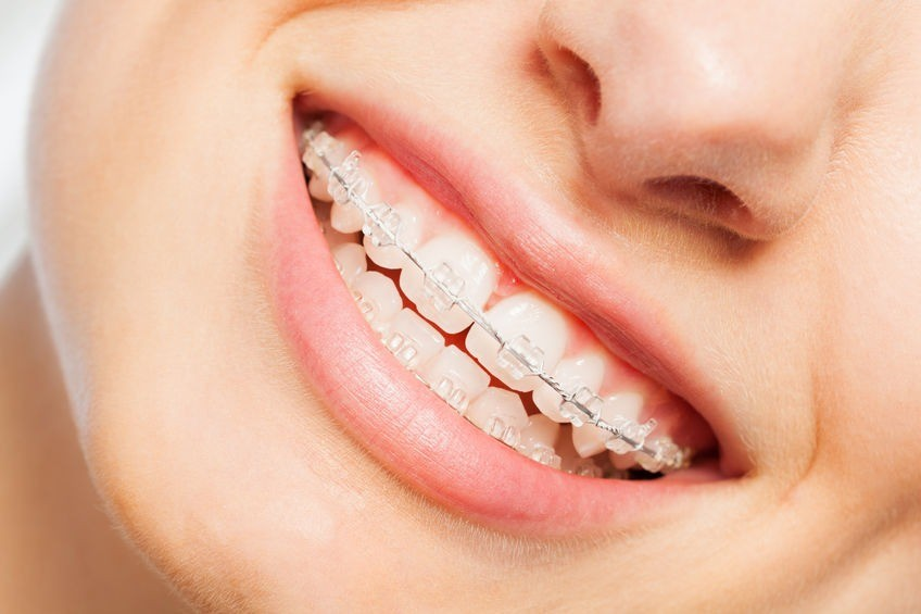 clear braces and ceramic braces dublin photo