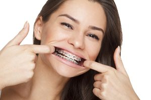 metal fixed braces for adults dublin