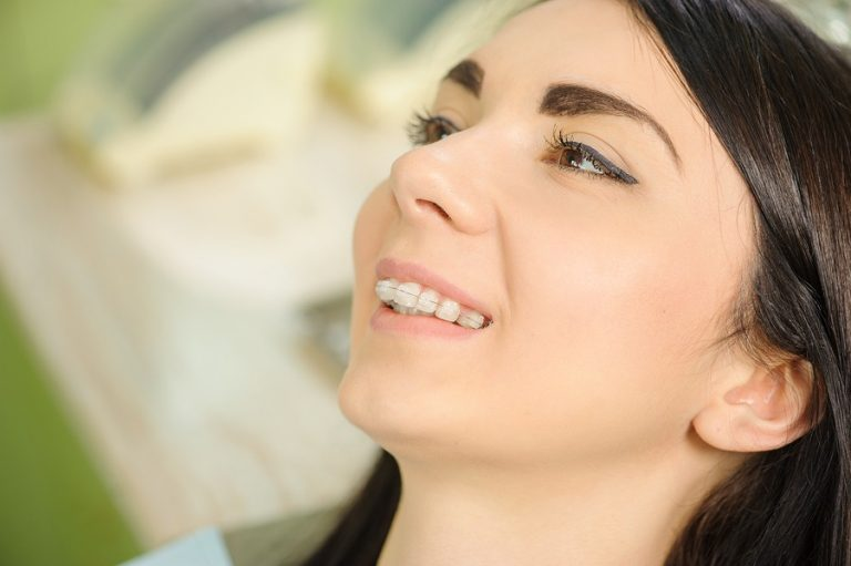 why choose getting ceramic braces dublin photo