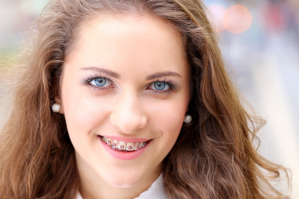 why choose our kids orthodontist braces for kids photo
