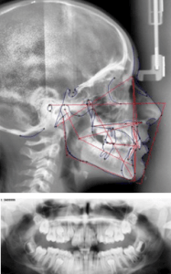 Profile (Above) and Panoramic (Below) x-rays